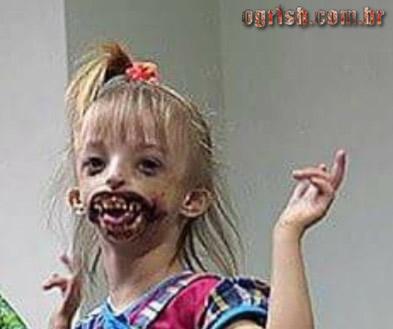 17-Criança que nasceu sem os lábios e o queixo Ogrish.com.br-05