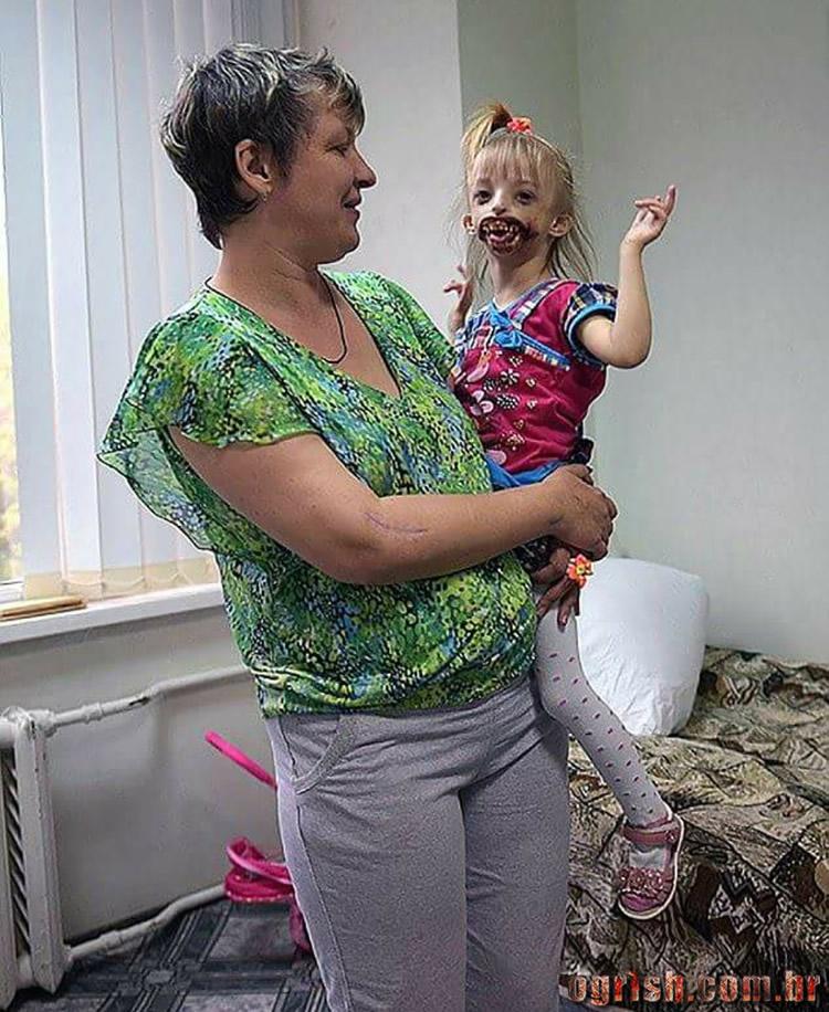 17-Criança que nasceu sem os lábios e o queixo Ogrish.com.br-06