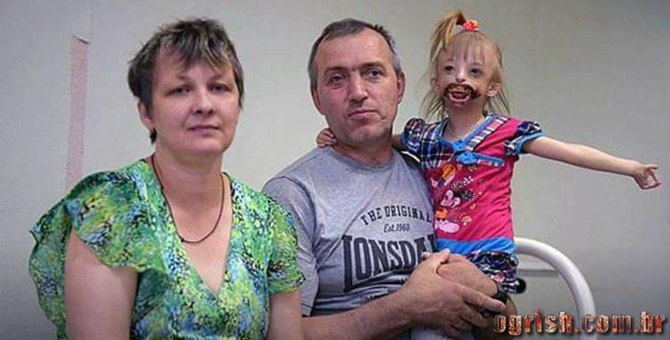 17-Criança que nasceu sem os lábios e o queixo Ogrish.com.br-07