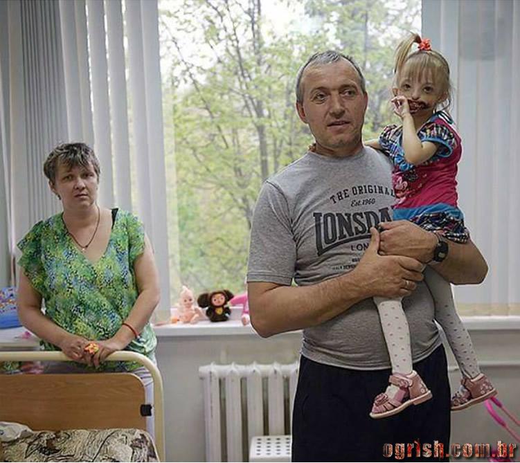 17-Criança que nasceu sem os lábios e o queixo Ogrish.com.br-08