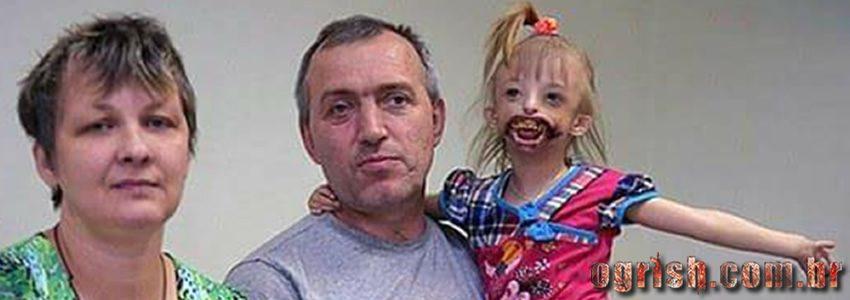 17-Criança que nasceu sem os lábios e o queixo Ogrish.com.br-09